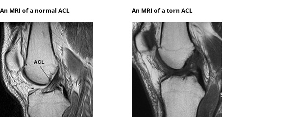MRI showing normal & torn ACL