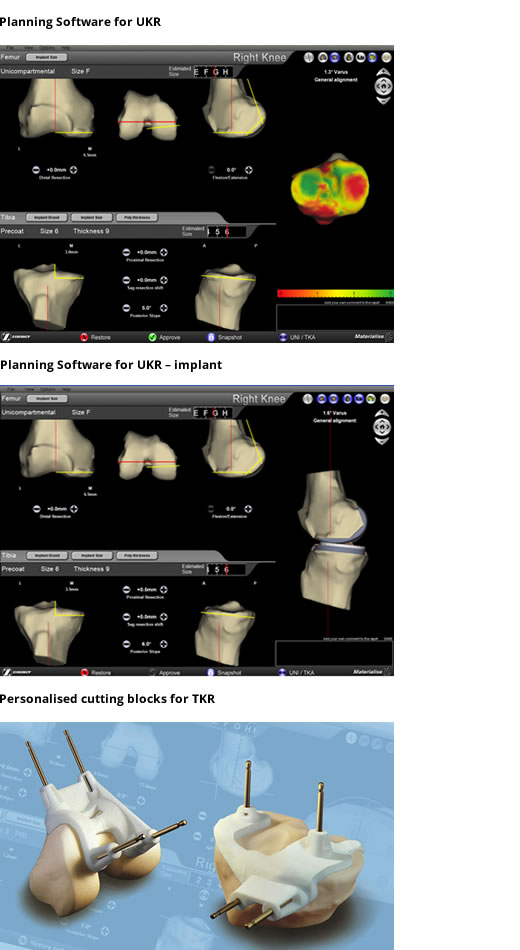 Planning Software for UKR & Implants