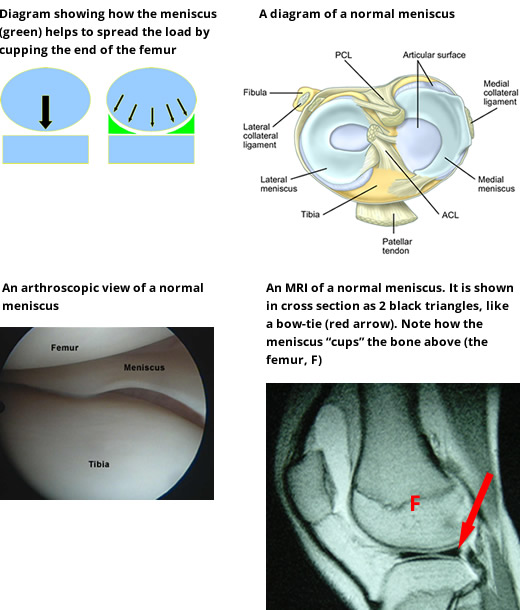 meniscal-cartilage-injuries-0001