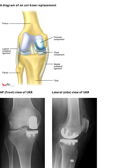Diagram & X-Ray of a Partial Knee Replacement