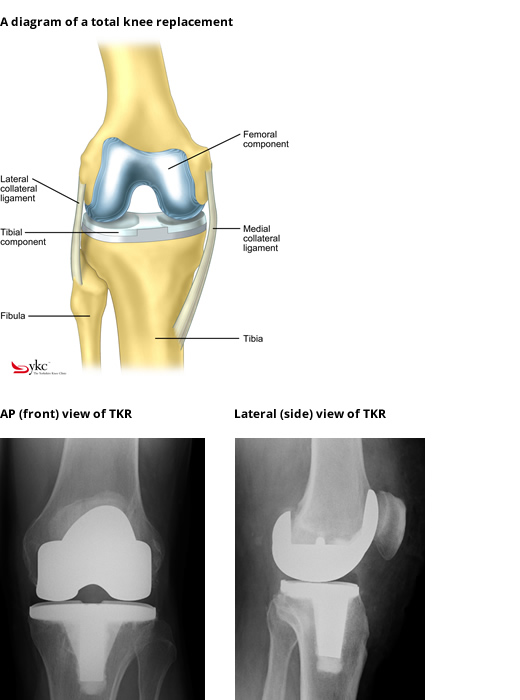 Diagram & X-Ray of a Total Knee Replacement