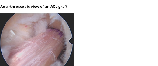 Arthroscopic View of ACL Graft