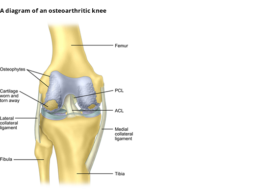 Diagram of an Osteoarthritic Knee