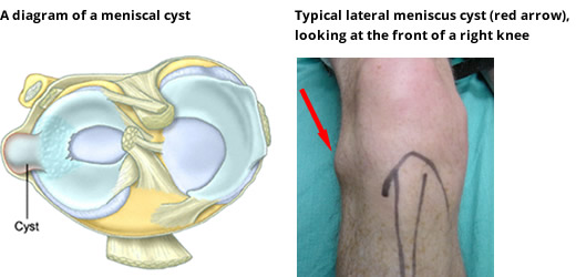 Meniscal Cartilage Tears & Injuries: Symptoms, Diagnosis