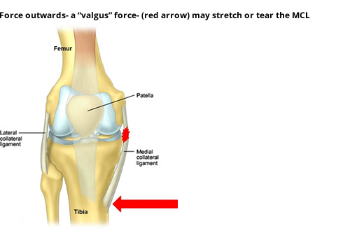 Medial Collateral Ligament (MCL) Injuries