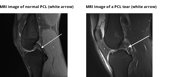 sports injuries posterior cruciate ligament tear essay Injuries to the anterior and posterior cruciate ligaments are generally referred to as sprains the acl, anterior cruciate ligament, is usually stretched or torn while when the feet are pointed in one direction and the knees are turned in the opposite direction.