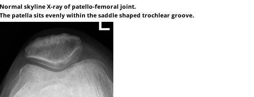 Patella Instability