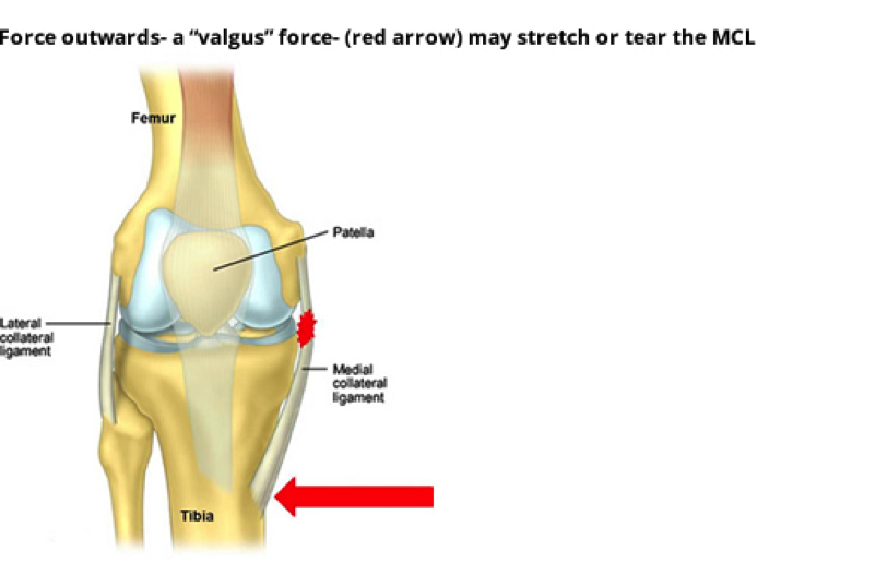 What Is A Partial Mcl Injury
