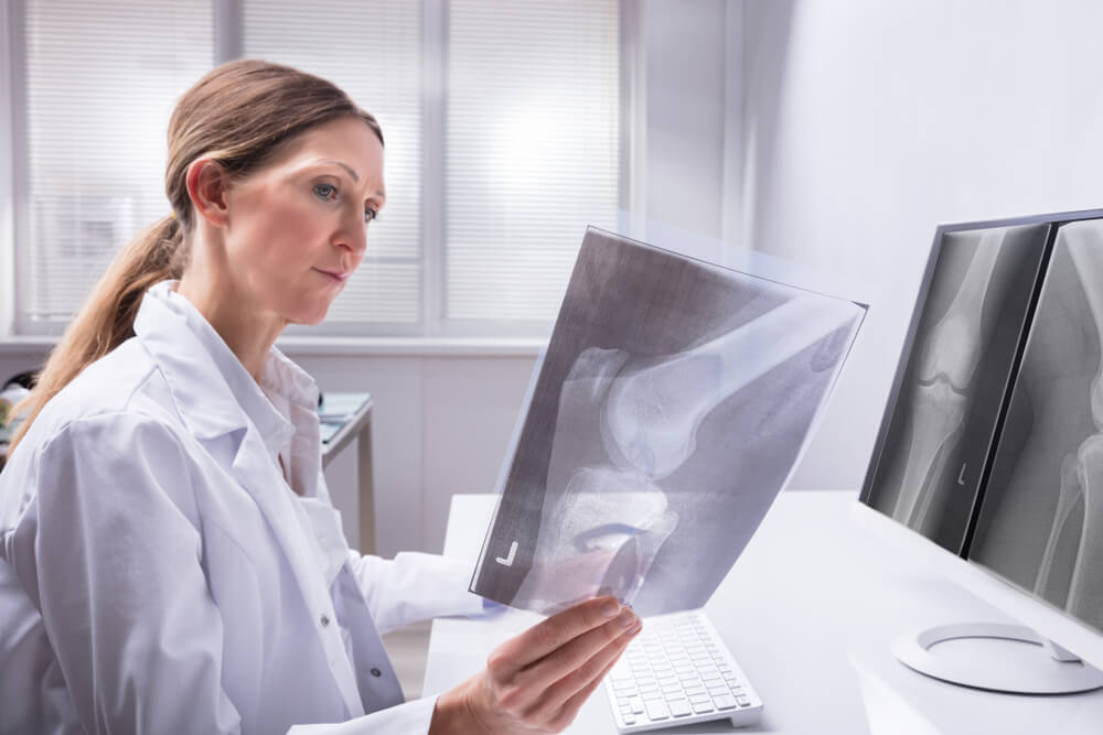 Knee Surgeon Reviewing an X-Ray