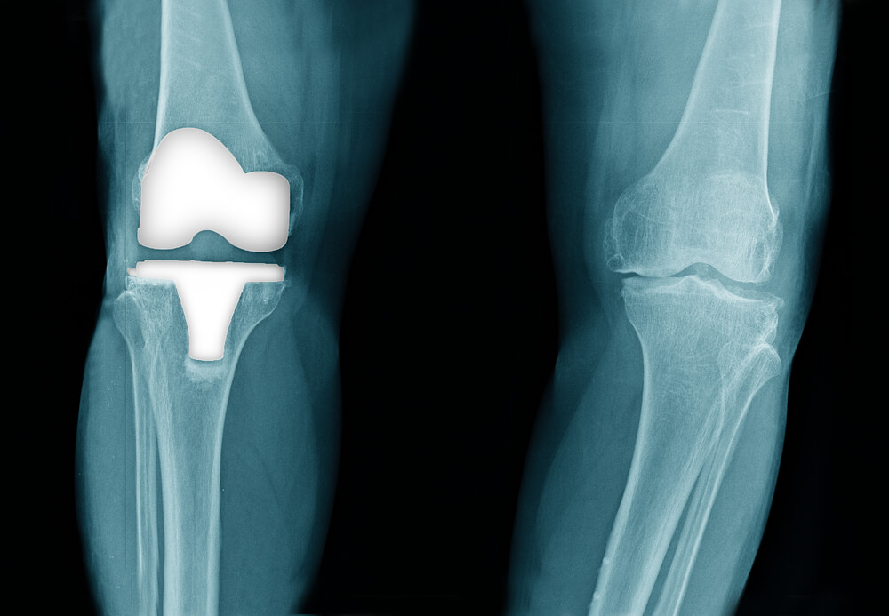 Knee Replacement Implant X-Ray