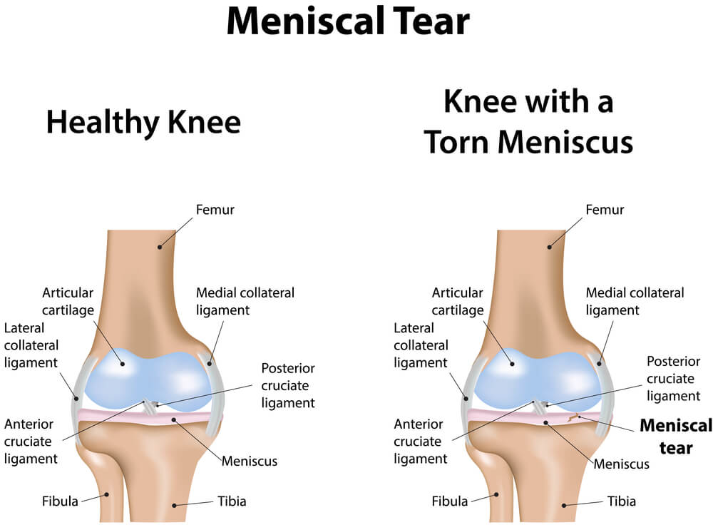 Meniscal root tears: to treat or not to treat?
