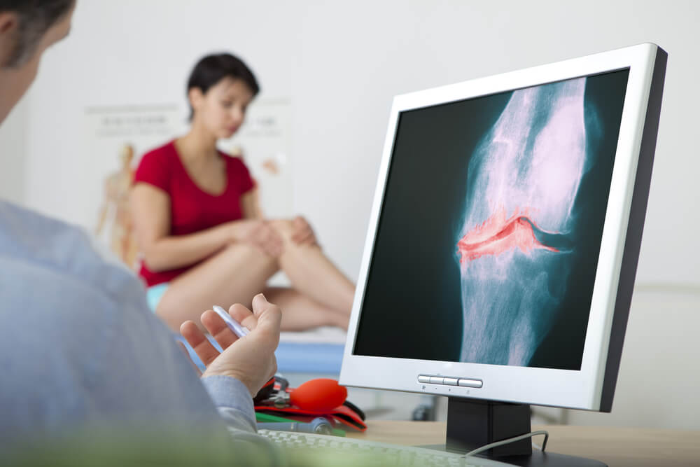 Rheumatoid Arthritis: Is A Knee Replacement the Solution?