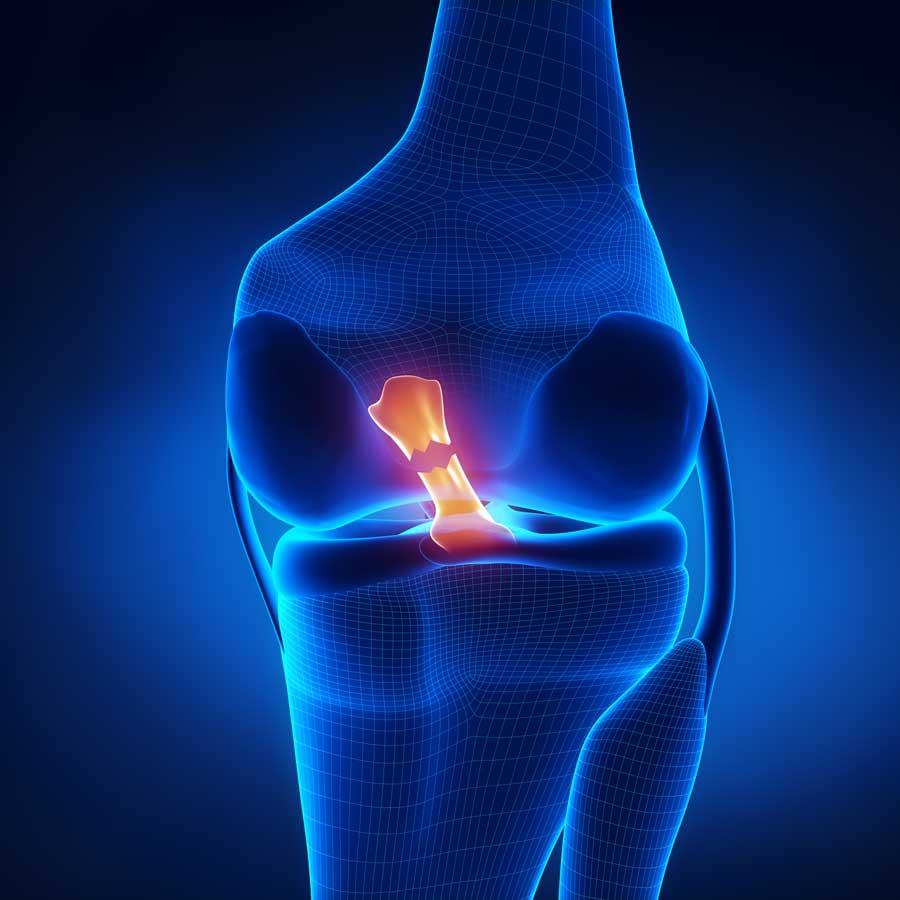 ACL torn Anterior Cruciate Ligament