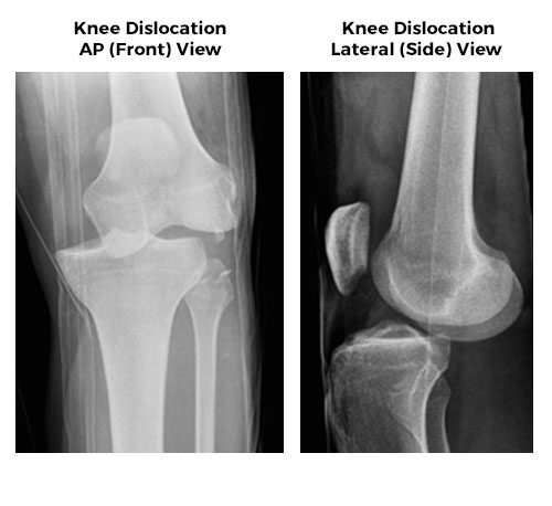 Complex Knee Ligament Injury Knee Dislocation