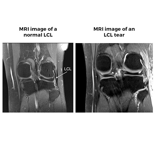 Complex Knee Ligament Injuries - MRI scan of a normal LCK & an LCL tear