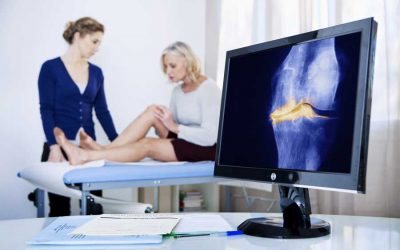 How Young Is Too Young for a Knee Replacement?