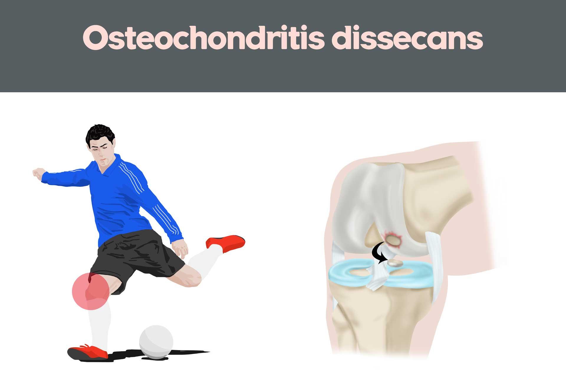 Osteochondritis Dissecans (OCD) Joint Surface Problems