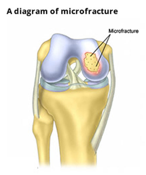 Joint surface problems microfracture