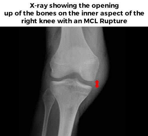 X-ray of a right knee MCL Rupture