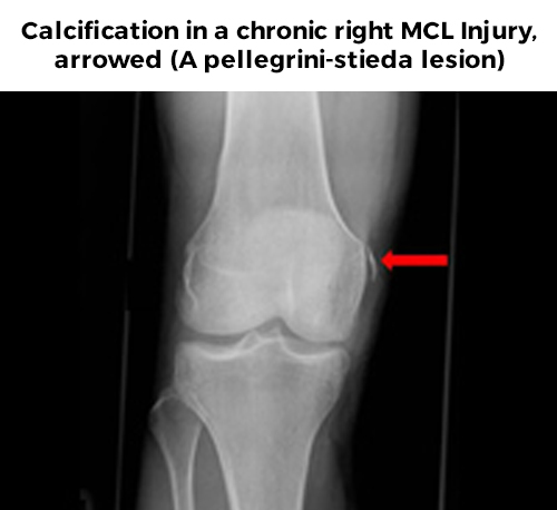 MCL Injury - Calcification x-ray of right MCL Injury