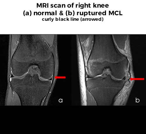 MCL Injury - MRI scan of right knee - normal & ruptured MCL