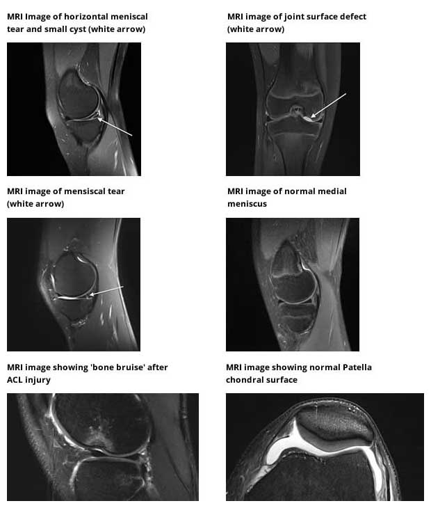 MRI scans (Magnetic Resonance Imaging)