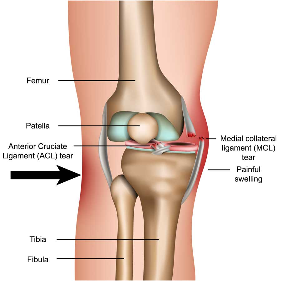 Torn Medial Collateral Ligament diagram