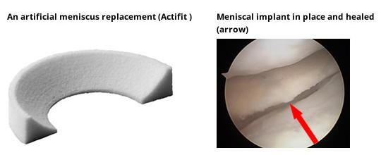 Meniscal Augmentation - replacement & implant - Meniscal Cartilage Injury