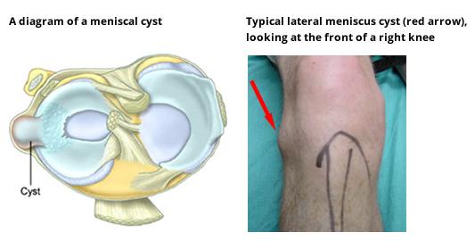 Meniscal cyst diagram - Meniscal Cartilage Injury