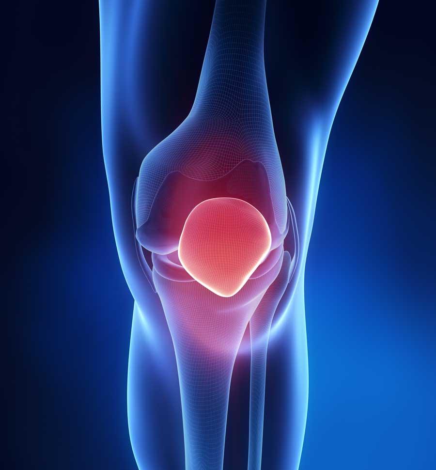 Patello femoral pain - patella knee condition