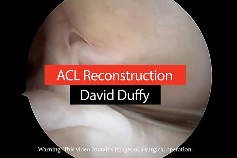 Video: Watch An ACL Reconstruction