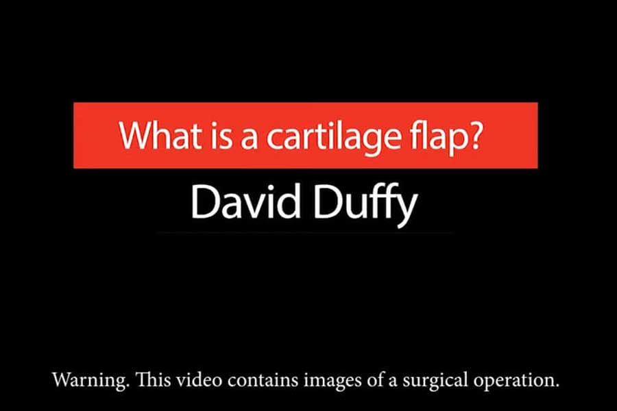 Video: What Is A Cartilage Flap?