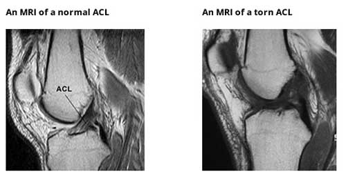 MRI Scan of a normal & torn ACL