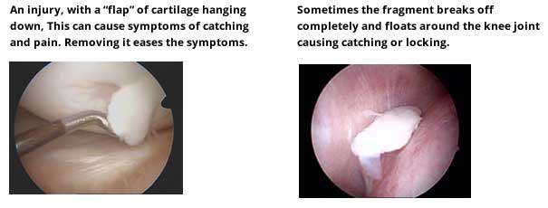 Joint surface problems cartilage injury