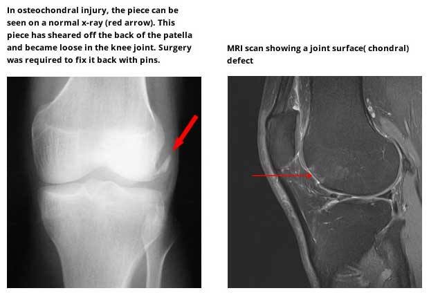 Joint surface problems osteochondral injury