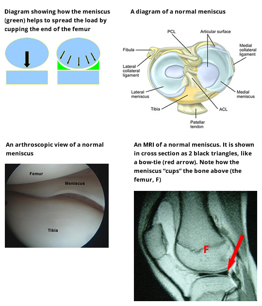 Meniscal Cartilage Injuries