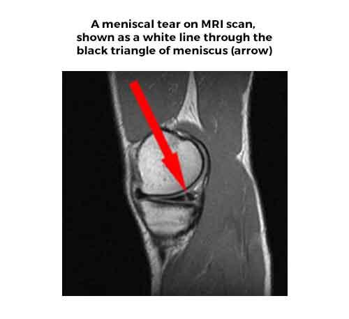 Meniscal Cartilage tear on MRI scan