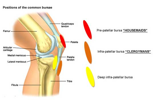 Positions of the common bursea - tendinitis overuse
