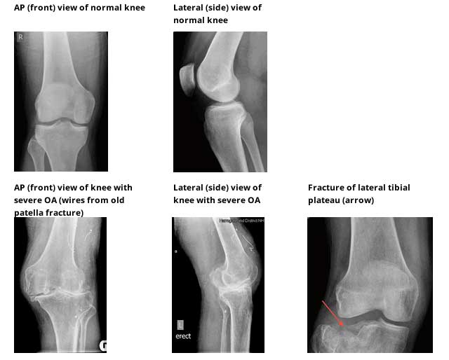 X-ray plain radiology knee investigations
